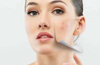 jenis macam metode prosedur treatment perawatan klinik dokter estetika kecantikan mengatasi menghilangkan jerawat acne therapy proses berapa harga kulit wajah mulus skincare