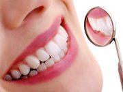Metode pemutihan gigi dengan bleaching beserta manfaat dan efek sampingnya