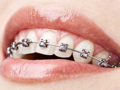 Dokter gigi spesialis ortodonti bertugas melakukan perawatan dan pemasangan jenis behel gigi yang paling tepat
