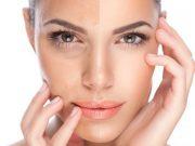 Jenis-jenis perawatan laser di klinik kecantikan yang ditangani dokter profesional dan manfaat serta tahapannya