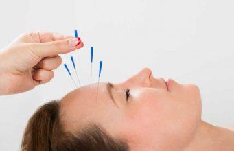 Akupunktur medika yang dilakukan oleh dokter spesialis di rumah sakit mempunyai beragam manfaat untuk kesehatan
