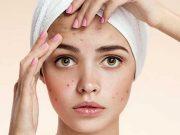 Tips cara paling efektif terbaik menghilangkan menyembuhkan jerawat acne treatment